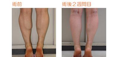 フクラハギを細くする手術(LDDN法) 術後2週間目_c0193771_10383436.jpg
