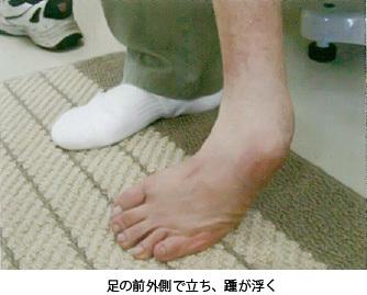 足の痛み~7 先天性内反足 症状~_a0296269_10064253.jpg