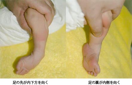 足の痛み~7 先天性内反足 症状~_a0296269_10064277.jpg