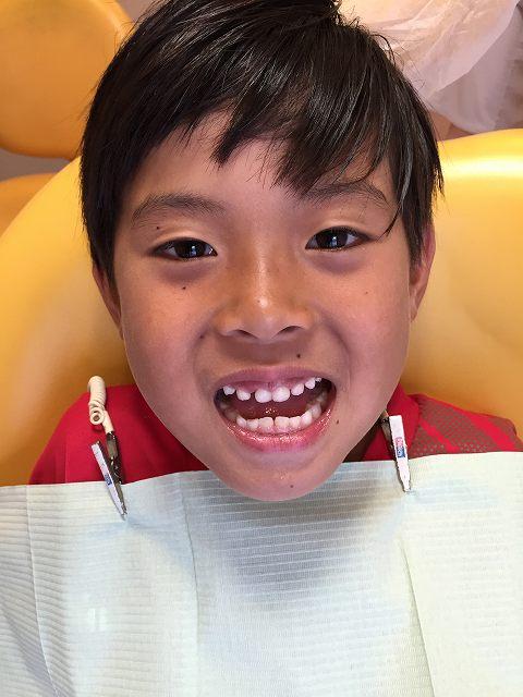 乳歯の抜歯_b0184294_15552690.jpg