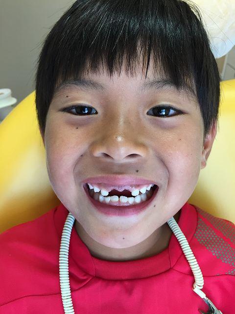 乳歯の抜歯_b0184294_15575649.jpg