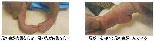 足の痛み~7 先天性内反足 診断~_a0296269_09372004.jpg
