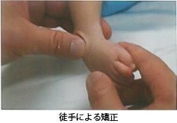 足の痛み~7 先天性内反足 治療~_a0296269_10123899.jpg