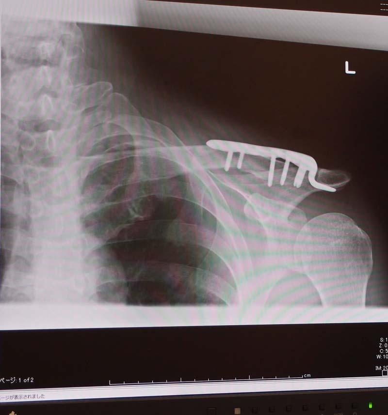 術後10日、外来受診_d0127876_1843144.jpg