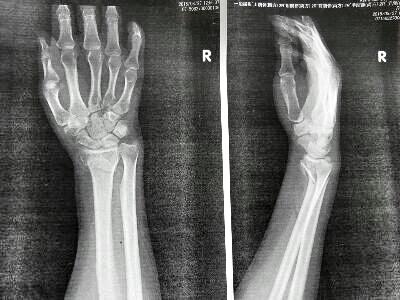 橈骨 遠 位 端 骨折 右 橈骨 遠 位 端 骨折 - dsgpk.terabite.ru