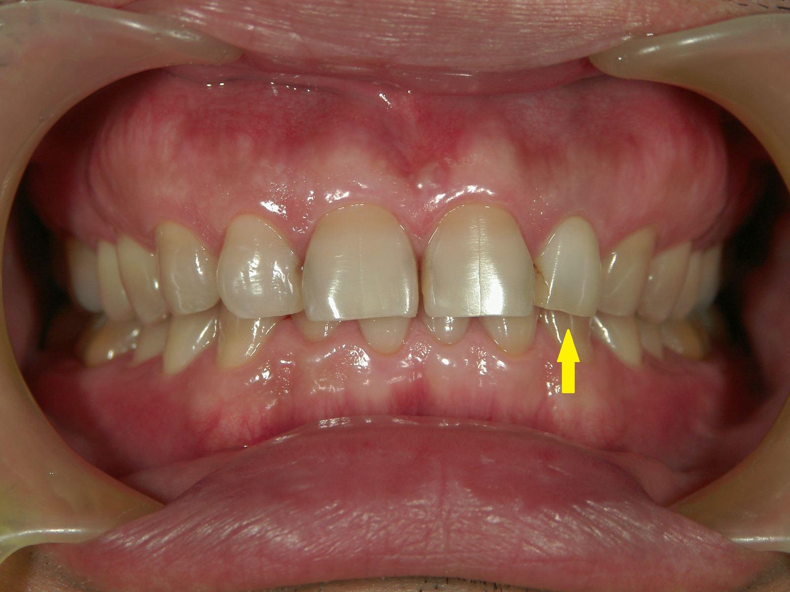 変色歯のホワイトニング・3例 ~MI的審美治療~_b0119466_23351571.jpg
