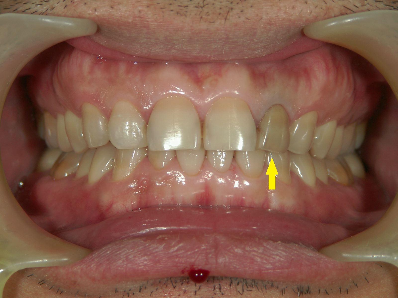 変色歯のホワイトニング・3例 ~MI的審美治療~_b0119466_2335234.jpg