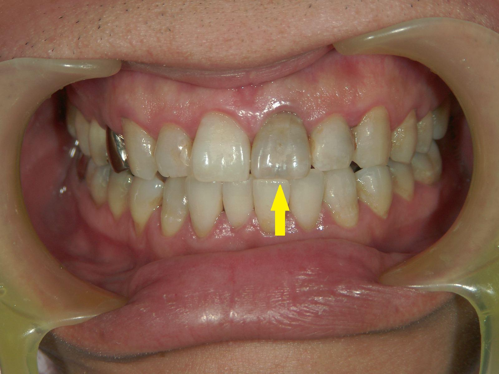 変色歯のホワイトニング・3例 ~MI的審美治療~_b0119466_23434655.jpg