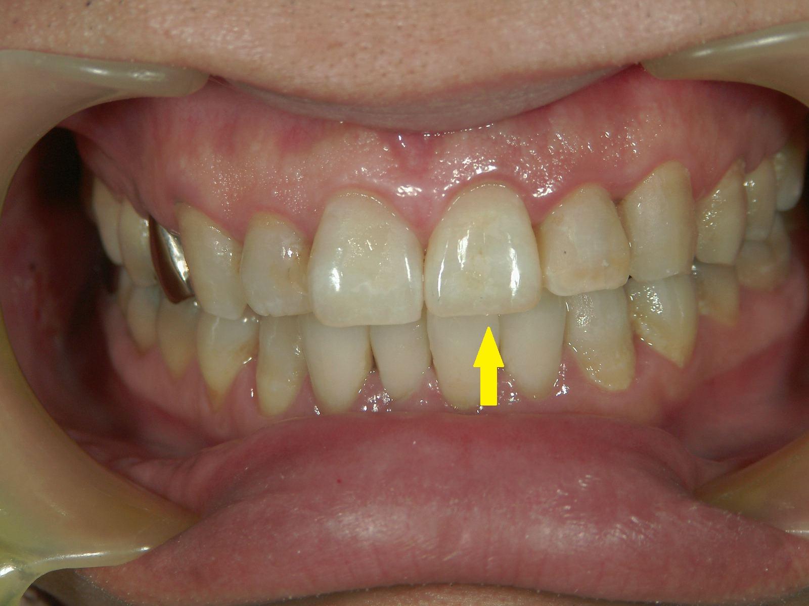 変色歯のホワイトニング・3例 ~MI的審美治療~_b0119466_23435483.jpg
