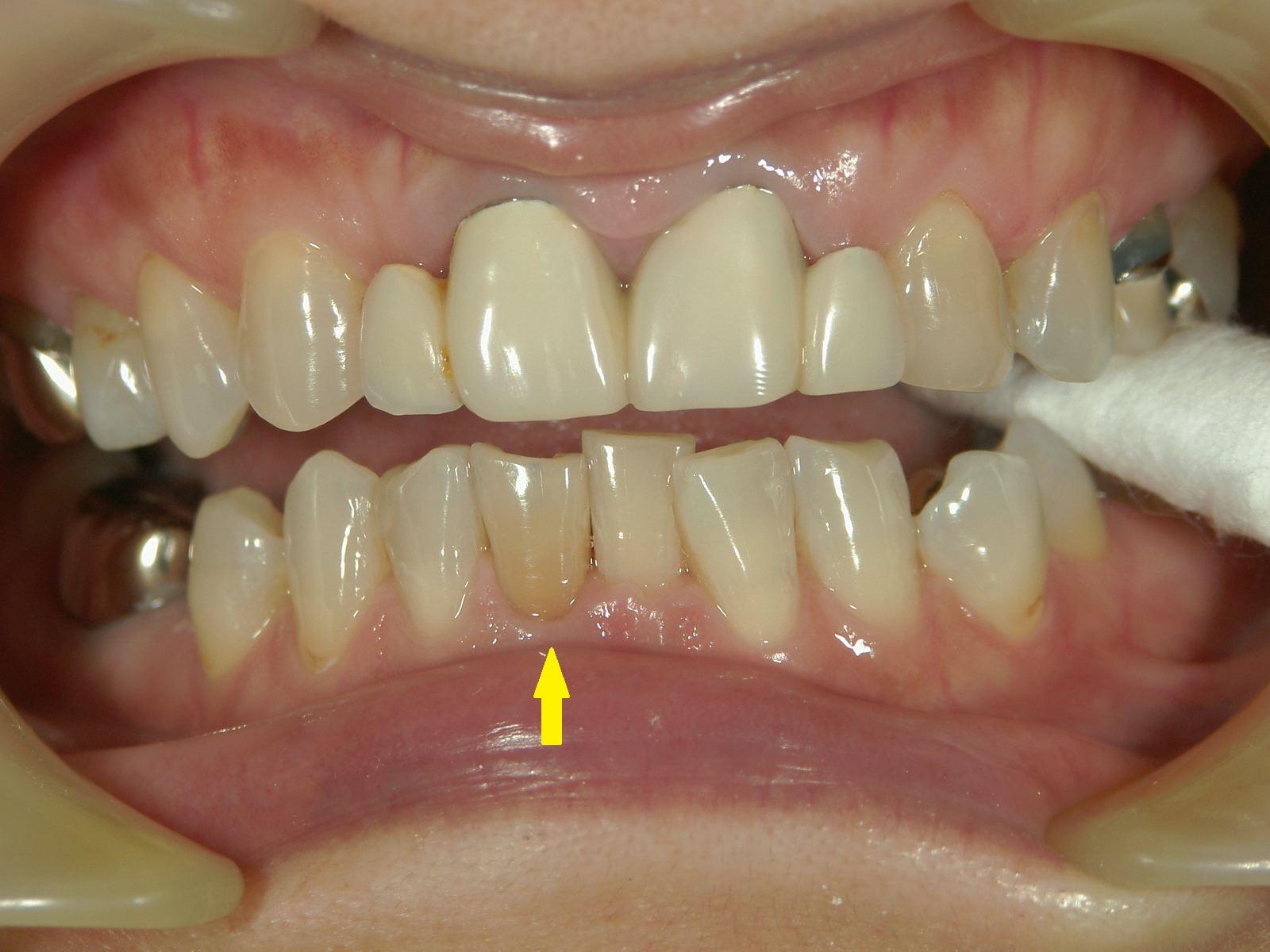 変色歯のホワイトニング・3例 ~MI的審美治療~_b0119466_23533453.jpg