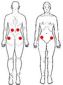 急性の腰痛の治療は簡単_b0052170_1383478.jpg