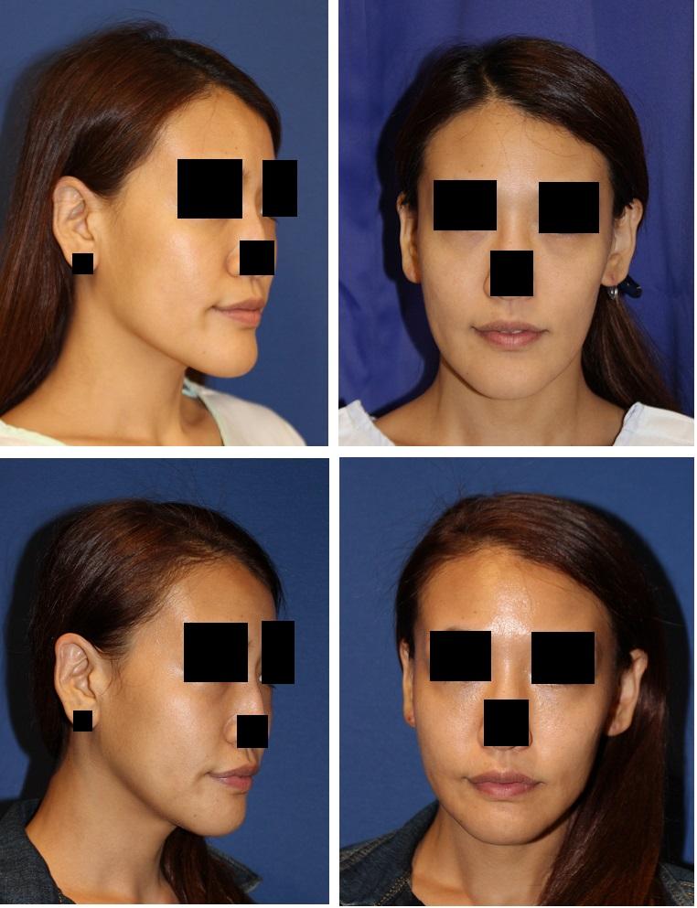 下顎骨下縁スティック骨切術 , 顎先骨切術_d0092965_104164.jpg