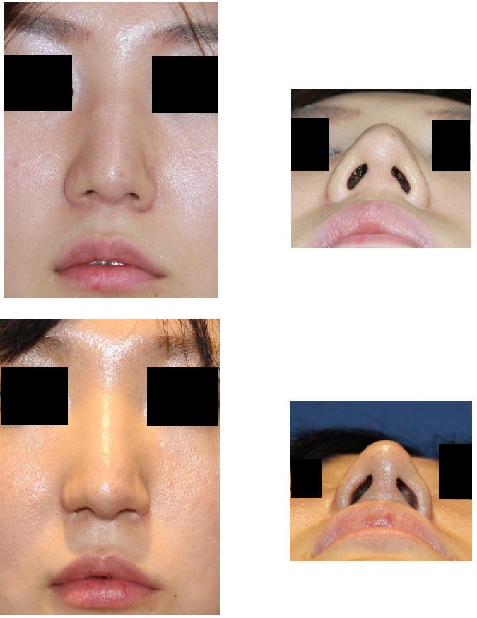 鼻孔縁拳上術、 小鼻肉厚減幅術  術後4年_d0092965_235346.jpg
