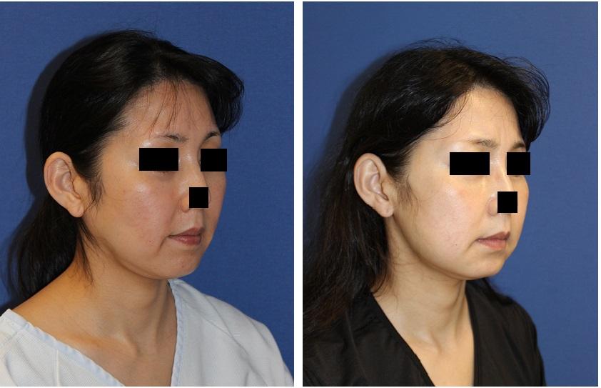 ルフォー(LeFort)Ⅰ型上顎骨切術(中顔面短縮術)+下顎矢状分割術 術後2週間_d0092965_2191667.jpg