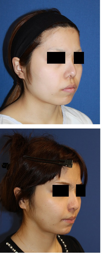 ルフォーⅠ型骨切術(中顔面短縮術)+SSRO,鼻中隔延長術,口角吊り上げ術_d0092965_0425258.jpg