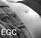 早期胃癌に対する胃切除は結核発症のリスク因子_e0156318_1741025.jpg