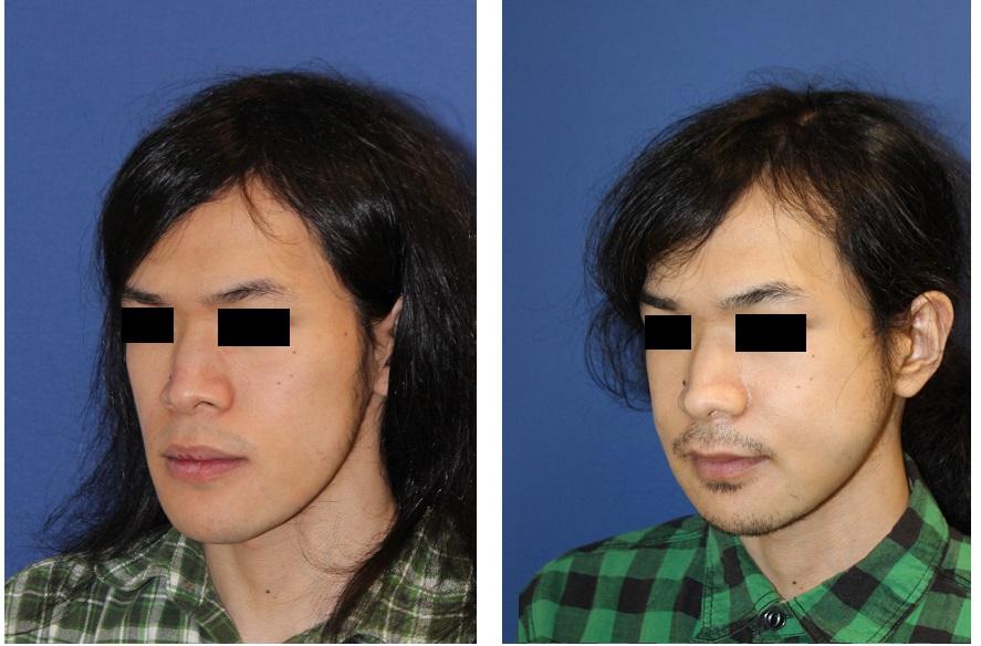 中顔面短縮術 (ルフォーⅠ型骨切術+下顎矢状分割術(SSRO))_d0092965_4331891.jpg