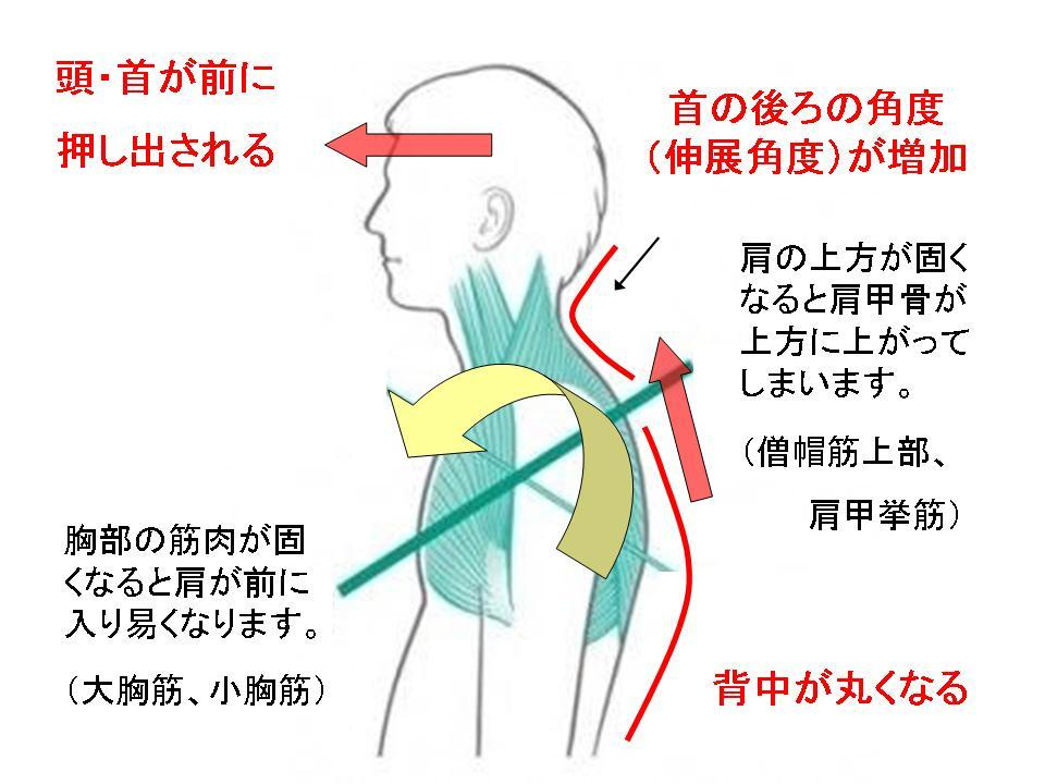 デスクワーク時の首の痛み -セルフ整体②ー ストレッチ_c0362789_12441778.jpg