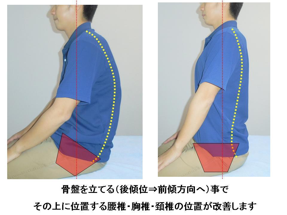 デスクワーク時の首の痛み -予防対策-_c0362789_01415822.jpg