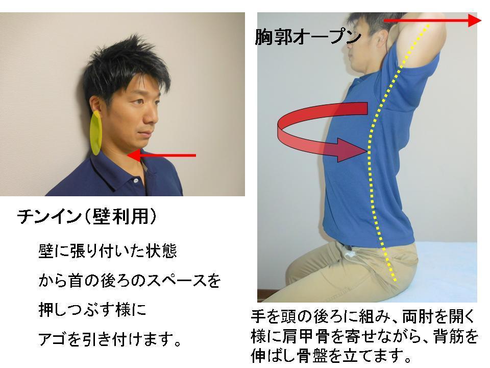 デスクワーク時の首の痛み -予防対策-_c0362789_01474535.jpg
