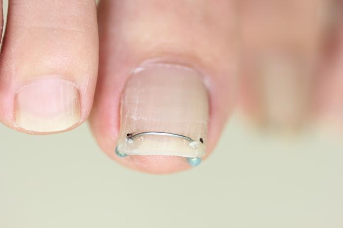 陥入爪、巻き爪の治療_a0335091_08125805.jpg