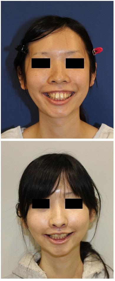 ルフォー(LeFort)Ⅰ型骨切術術後 人中短縮術、口角吊り上げ術術後三か月_d0092965_010954.jpg