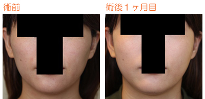 頬骨削り(再構築法) 術後1ヶ月目_c0193771_9565180.jpg
