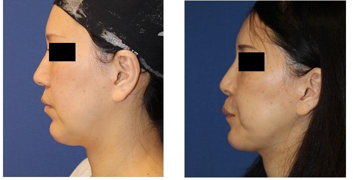 他院顎プロテーゼ抜去 後  顎先アパタイト形成術_d0092965_3541141.jpg