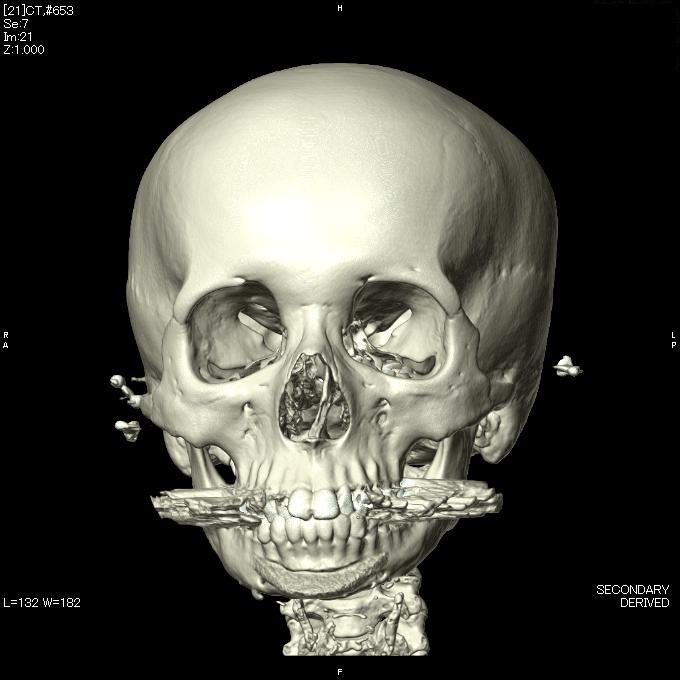 他院Vライン形成術後修正、 他院顎先プロテーゼ留置後修正術_d0092965_013375.jpg