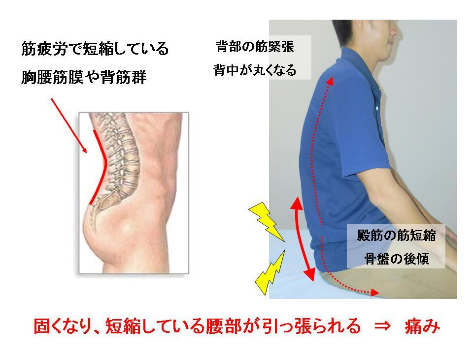 腰痛に効果的なセルフケア(前に倒れる動作の痛み)_c0362789_06570552.jpg