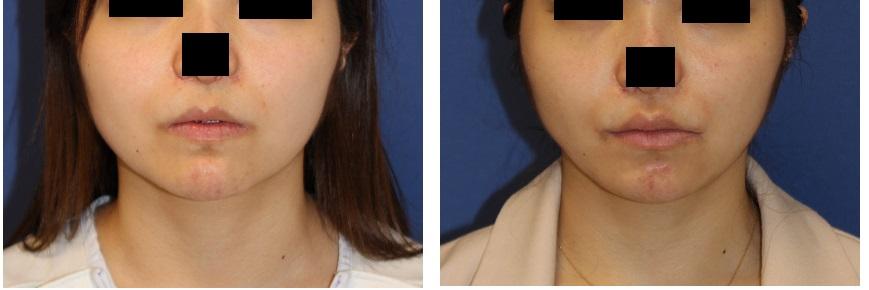 上口唇増大(VYplasty) , 下顎縁アキュスカルプレーザー + ミントリフトミニS_d0092965_052880.jpg