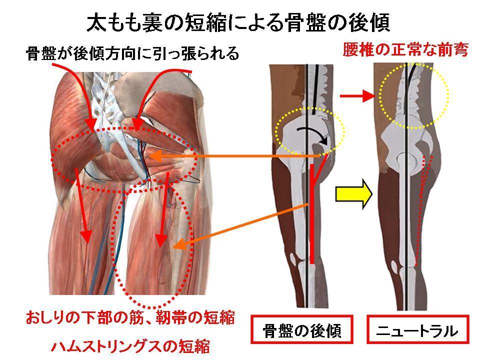腰痛の改善に効果的なセルフケア(太もも裏、骨盤の姿勢)_c0362789_00111181.jpg