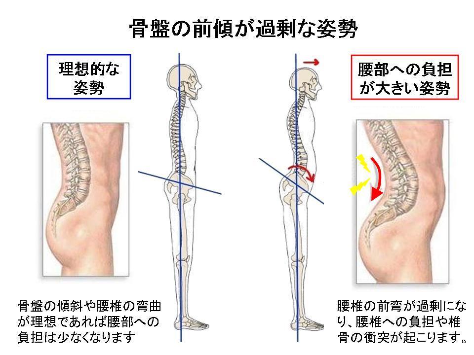 腰痛を自分で改善させる方法①(腰を反ると痛い方へ・・・)_c0362789_09324971.jpg