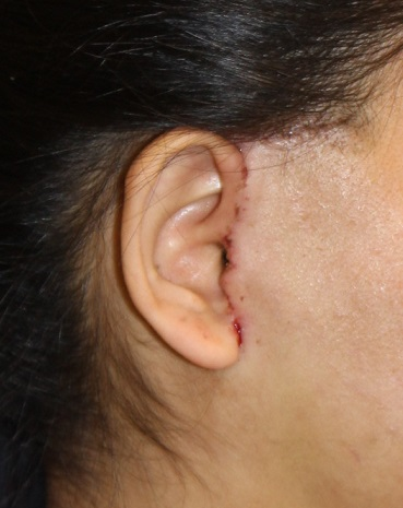 ルーフォーⅠ型骨切術、SSRO術後のたるみに対するSMASフェイスリフト_d0092965_2154386.jpg