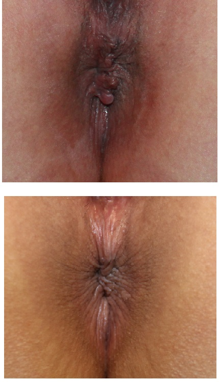 肛門美的形成術 、 肛門脱色治療_d0092965_3343491.jpg