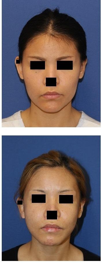 他院LeFortⅠ型骨切術後修正術、下顎矢状分割術、下顎スティック骨切、頬骨骨切術、顎先骨切前方移動術_d0092965_0354882.jpg