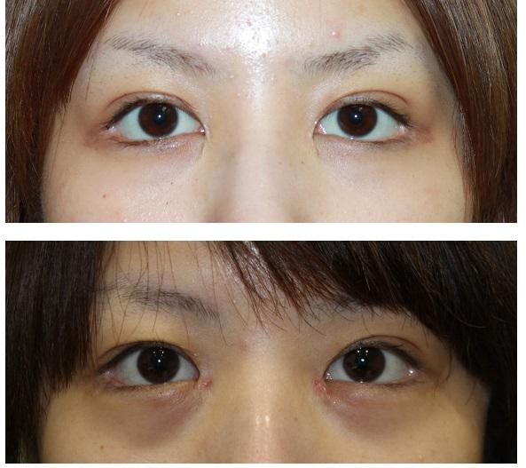 他院グラマラスライン形成術術後修正  左目三白眼修正術 術後四年_d0092965_1305326.jpg
