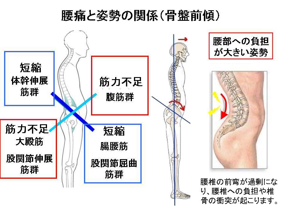 腰痛を自分で改善させる方法④(腰を反ると痛い方へ・・・)_c0362789_06020217.jpg