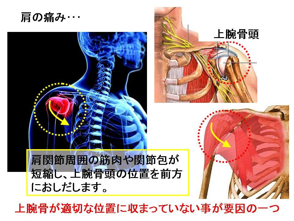 競泳選手の肩の痛み③ (肩関節のストレッチ)_c0362789_11083783.jpg