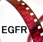 早期レスポンダーでは、EGFR-TKI開始早期から血清EGFR遺伝子変異が減少する_e0156318_1164629.jpg