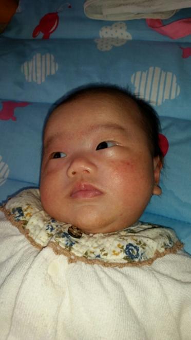 乳児湿疹(松浦)_f0354314_23102689.jpg