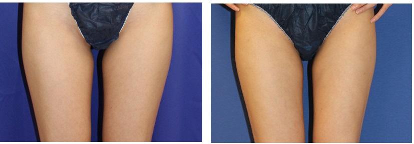 大腿VASER(ベイザー)脂肪吸引_d0092965_2303694.jpg