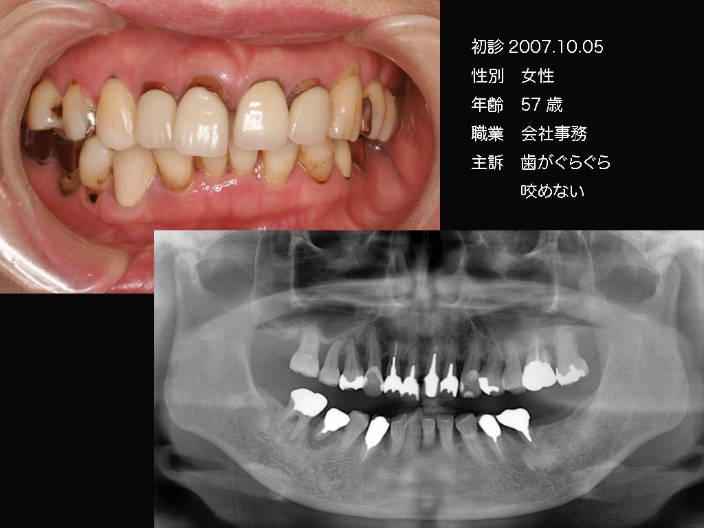 b0112648_17234158.jpg