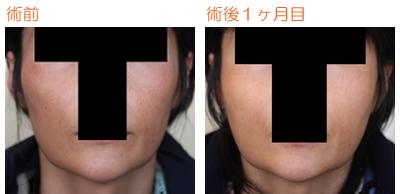 頬骨削り(再構築法) 術後1ヶ月目_c0193771_10195278.jpg
