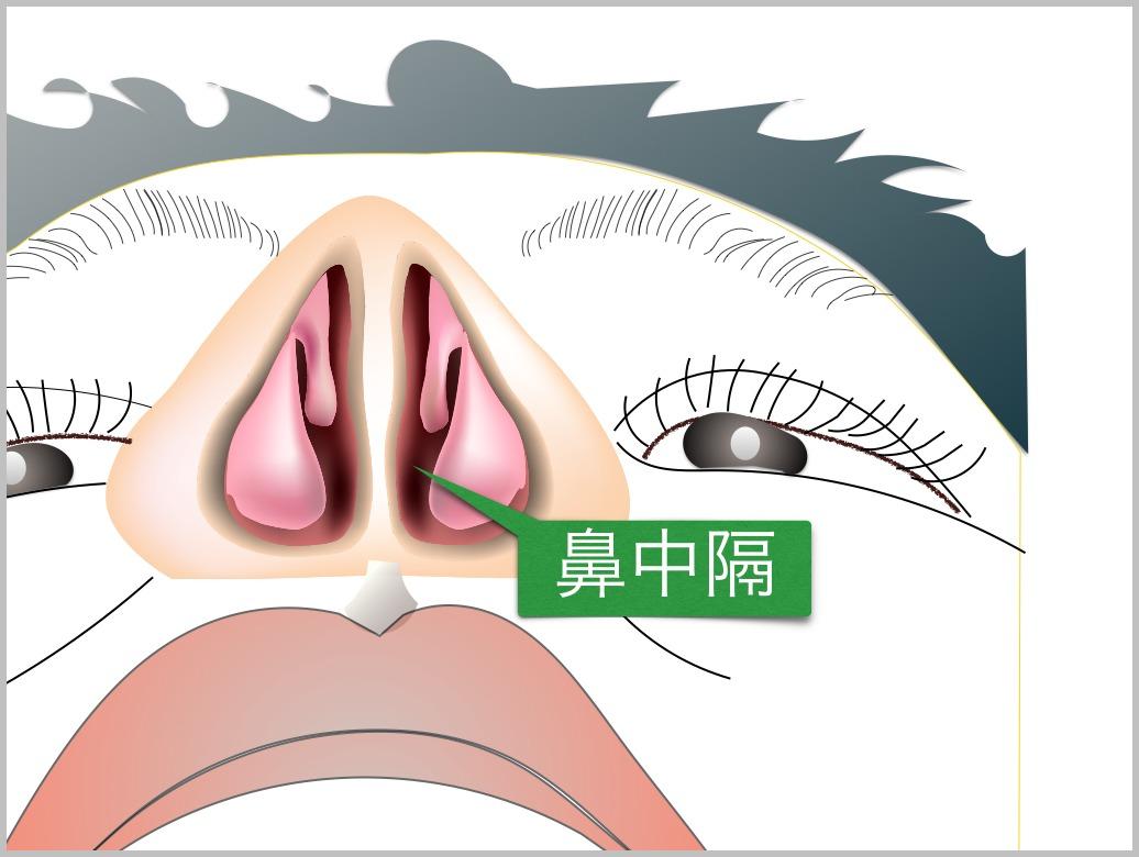 鼻中隔彎曲症_e0084756_2140469.jpg