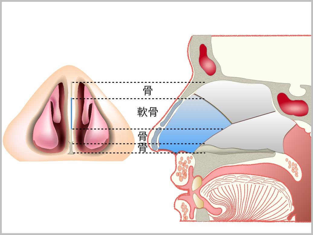 鼻中隔彎曲症_e0084756_21413929.jpg