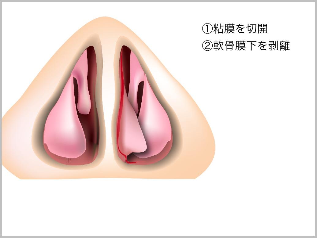 鼻中隔彎曲症_e0084756_21425584.jpg