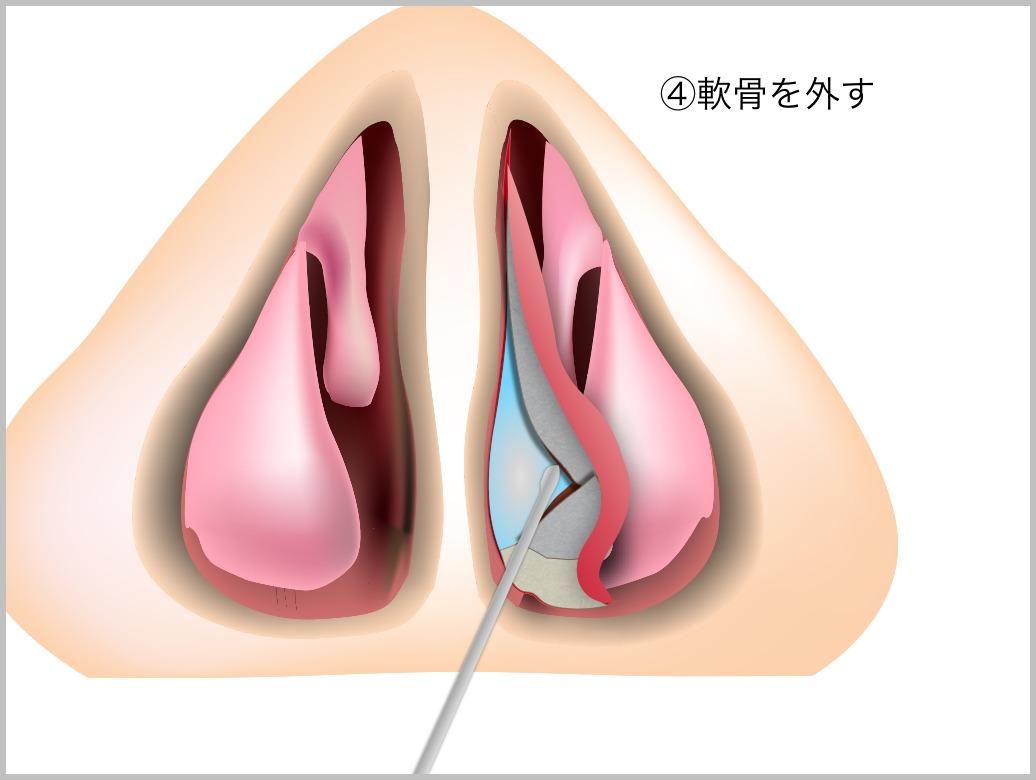 鼻中隔彎曲症_e0084756_21433185.jpg