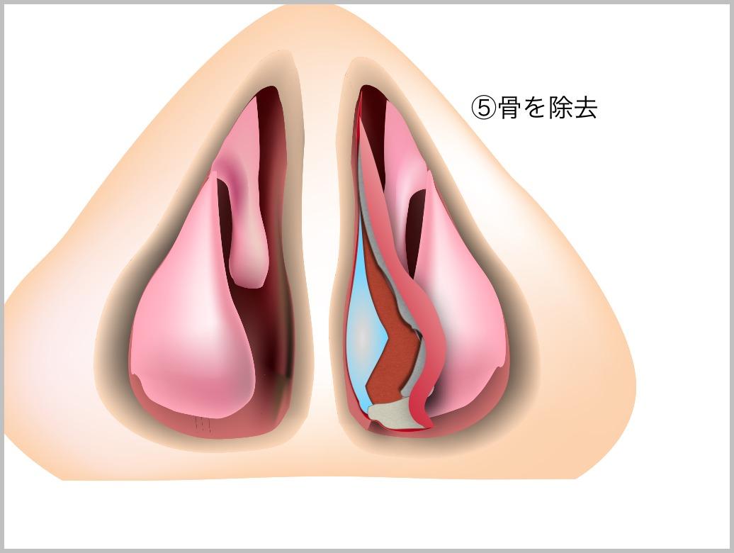 鼻中隔彎曲症_e0084756_21434993.jpg