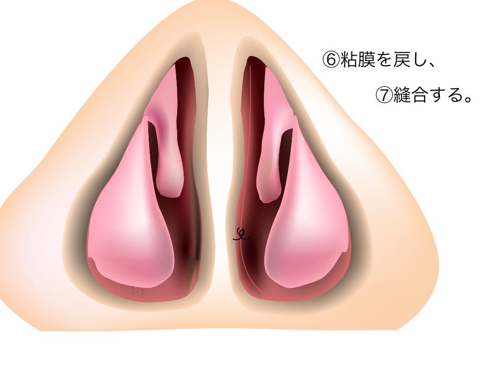 鼻中隔彎曲症_e0084756_23444094.jpg